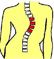 Scoliose Thoracique